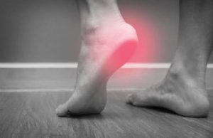 Read more about the article Plantar Fasciitis